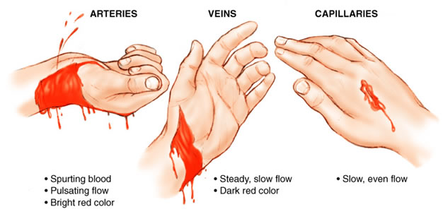fr33 aid lesson: bleeding control » fr33aid, Skeleton